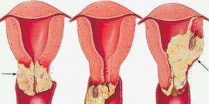 أعراض سرطان عنق الرحم بالتفصيل