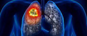 أعراض سرطان الرئة