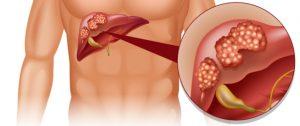 أعراض سرطان الكبد