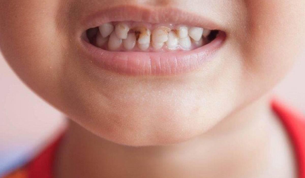 تسوس الأسنان عند الأطفال وقاية