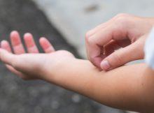 حساسية الجلد عند الأطفال من الأكل