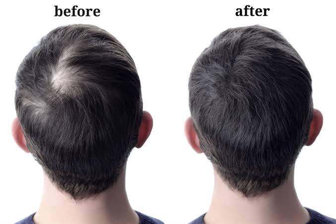 عمليات زراعة الشعر للرأس